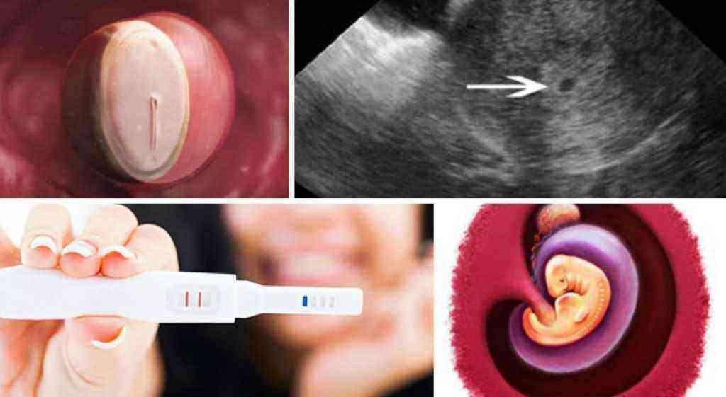 Эмбрион на 4 неделе беременности
