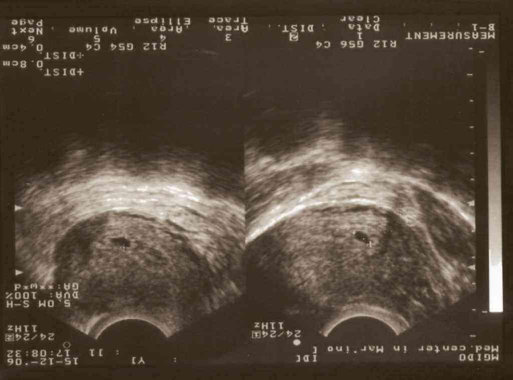 Третья неделя беременности